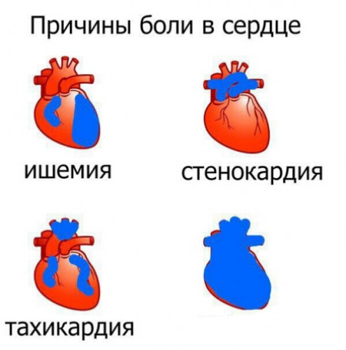 Create meme: Causes of pain in the heart